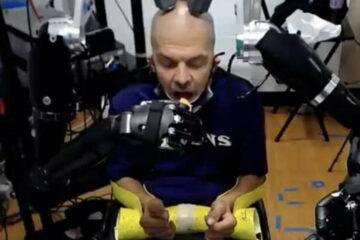 brain implants